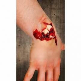Fausse blessure - Fracture ouverte du poignet
